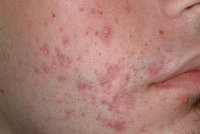 post inflammatory hyperpigmentation do you have hyperpigmentation from acne. Black Bedroom Furniture Sets. Home Design Ideas