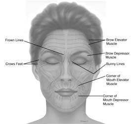 botox injections for wrinkles botox complications and costs. Black Bedroom Furniture Sets. Home Design Ideas