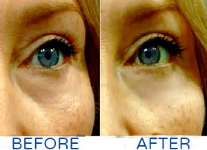 Reduce Crepey Skin Under Eyes