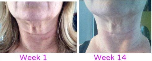 neck wrinkles exercises