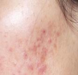 best natural skin care for acne