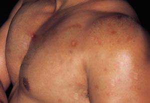 body acne treatments