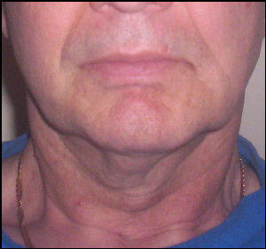 how to avoid wrinkles on neck