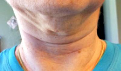 Which crepey skin creme for neck wrinkles?