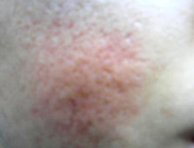 picture of facial scars