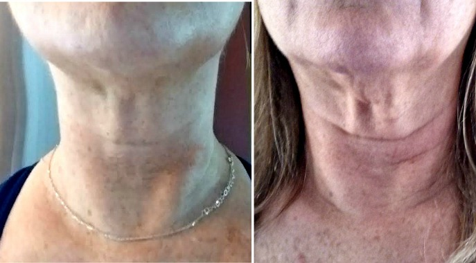 No More Sagging Neck Skin