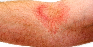 Looking for Pictures of Skin Rash and Hives?