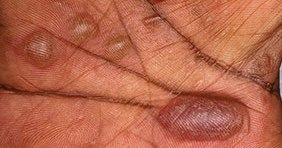 atopic dermatitis pictures - acute case
