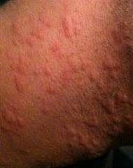 how to avoid shaving rash on neck