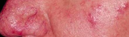 picture of rosacea - what is rosacea