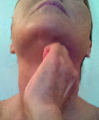 sagging neck skin exercises