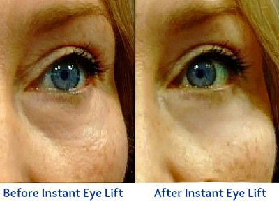 Sudden Change for Fine Lines Under Eyes