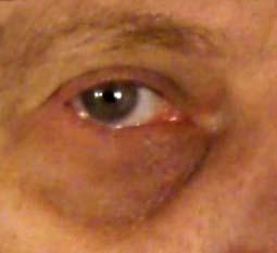 Treating Dark Circles Around Eyes Quick No Makeup Fix