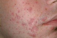 TCA peel for acne