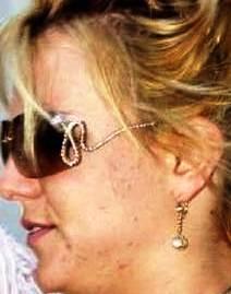 Britney Spears Wrinkles