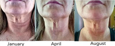 face tightening really works!