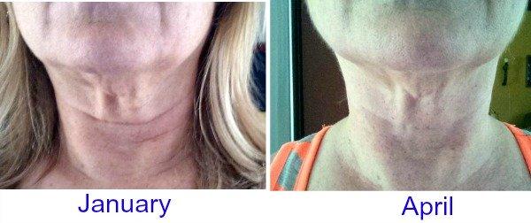Do face exercises work?