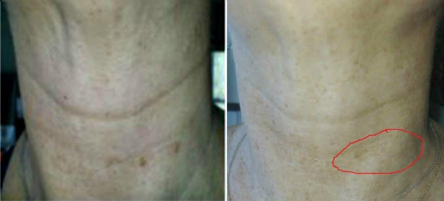 get rid of dark spots on the neck