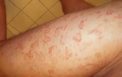 Type Of Skin Rash
