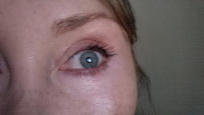 quick fix for crepey skin under eyes