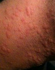 Different types of rashes in adults