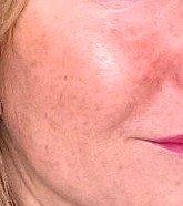 types of hyperpigmentation
