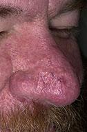 Photo Courtesy of http://www.dermnet.com/