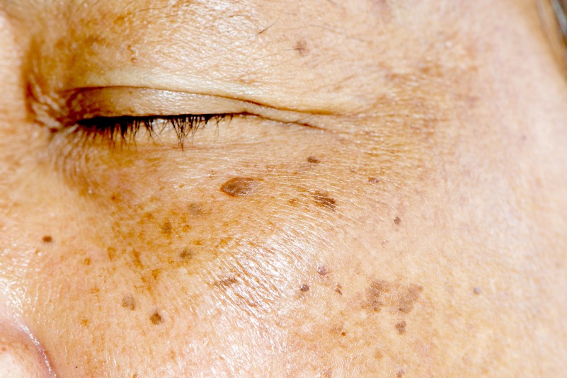 treatment for hyperpigmentation